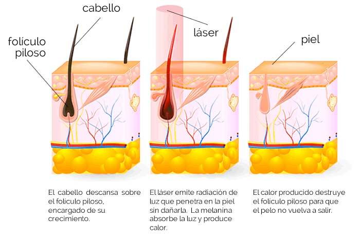 funcionamiento depilación láser